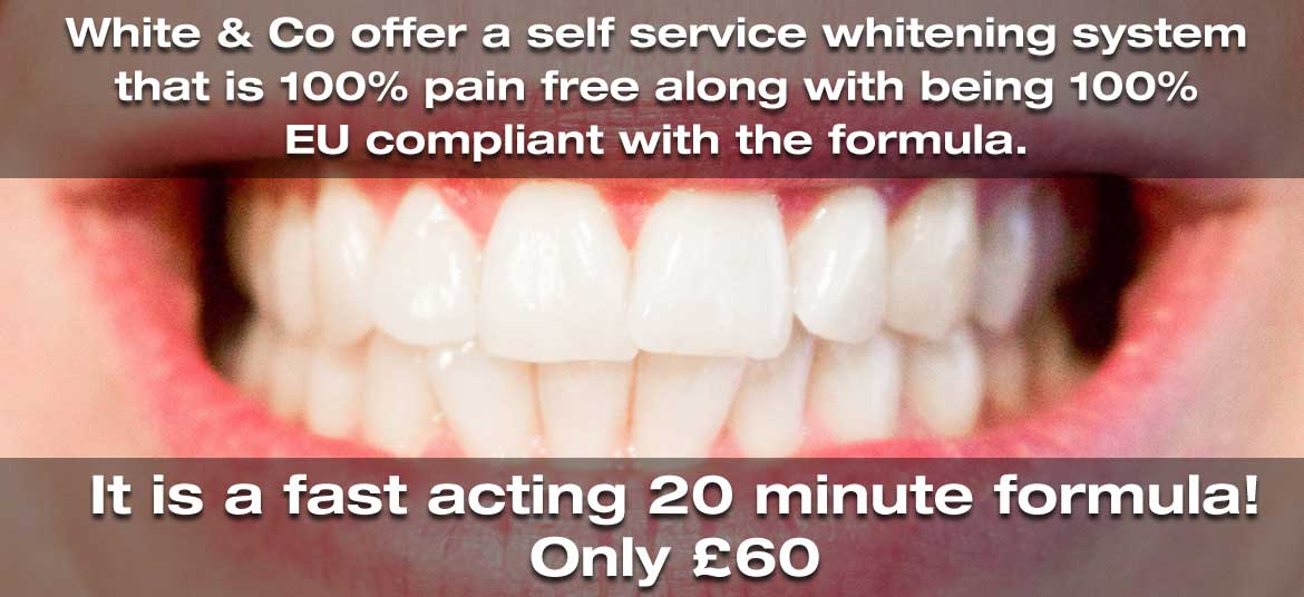 Teeth Whitening in bolton