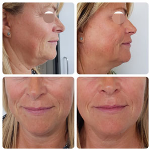 Wrinkle Relaxing Injections (botox), Dermal Fillers & Ear