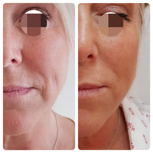 Wrinkle Relaxing Injections (botox), Dermal Fillers & Ear Syringing